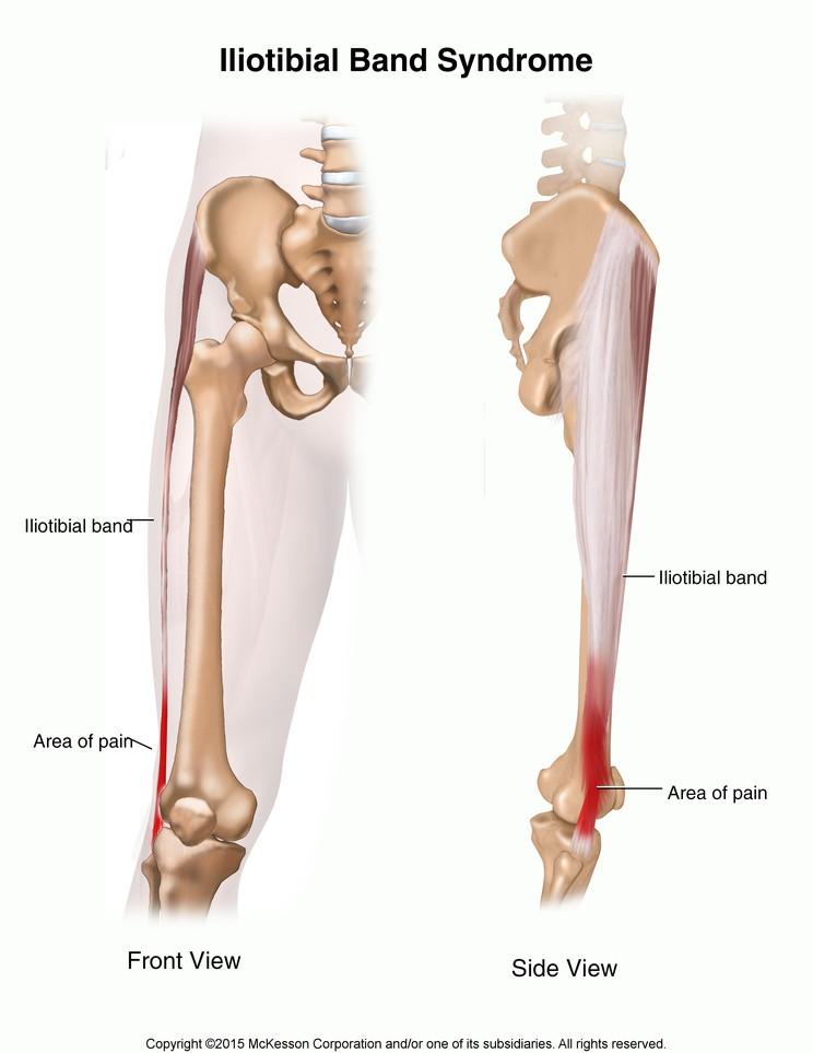 Iliotibial Band Syndrome: Illustration